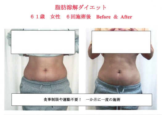 太りやすい人と太りにくい人の差=脂肪細胞の数