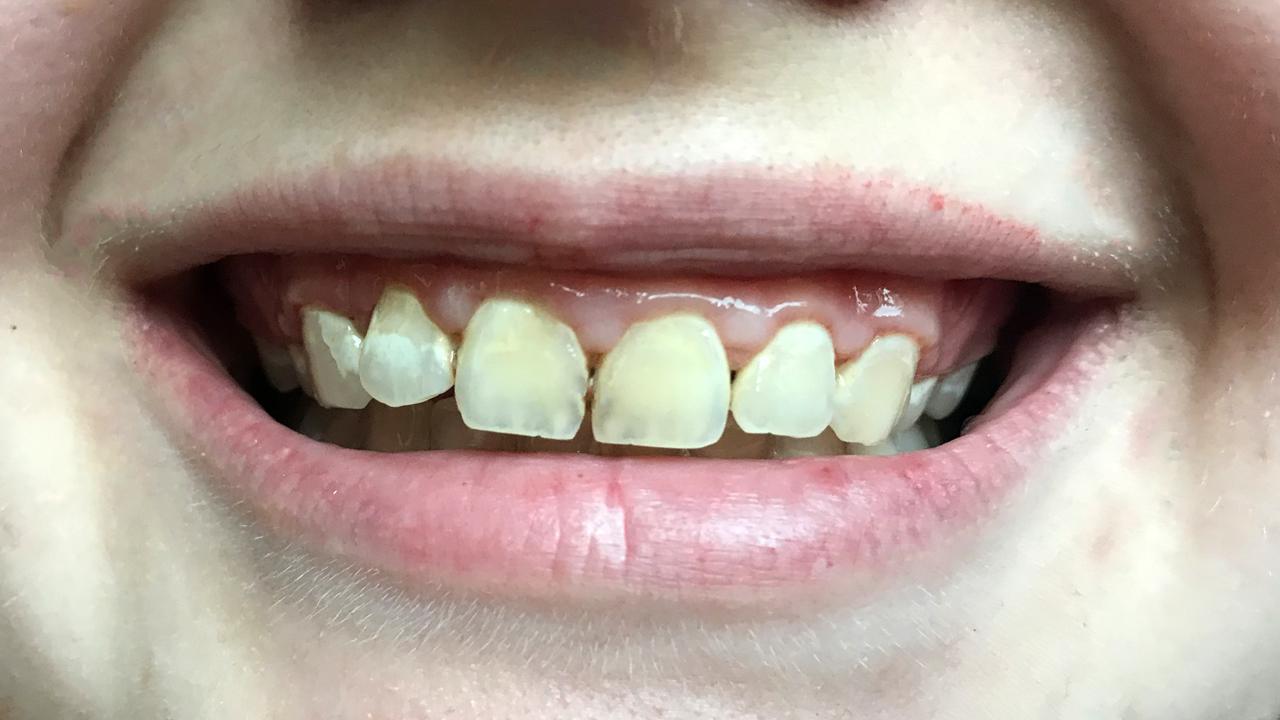 Teeth Before.jpg