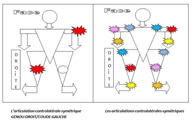 douleurs controlatérales symétriques