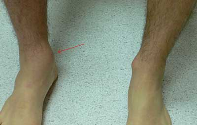 lateral malleolus swelling - photo #34