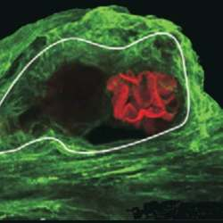 A photoreceptor cell in the brain of a horseshoe crab