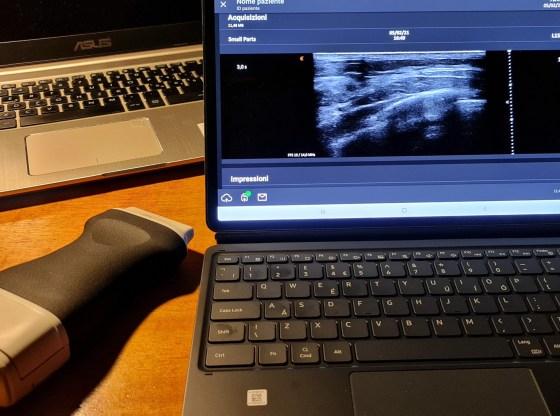 La foto mostra la sonda del progetto SABREEN e le immagini da essa ottenute