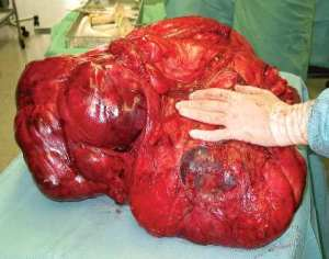 massive tumor