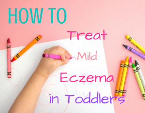 Magical Mama Blog How To Treat Mild Eczema in Toddlers