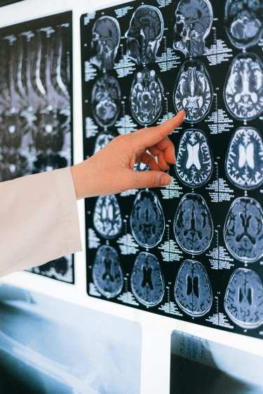 脳梗塞を発症した人がマグネシウムを摂取する意義