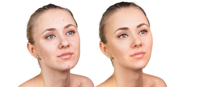 a before and after of a young woman with a chemical peel