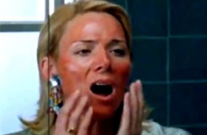chemical peel gone wrong