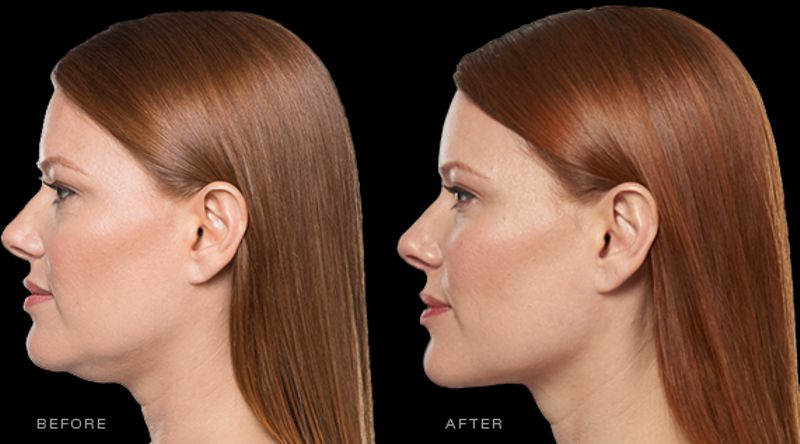 chin fat reduction with Kybella