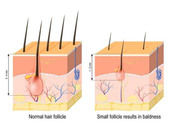 alopecia shrinking hair follicles