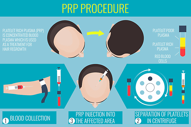 prp procedure for male pattern baldness