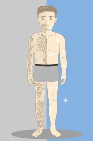 laser hair removal for men body treatment areas