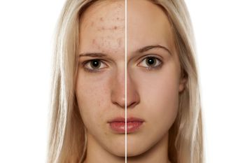 acne before after using tretinoin