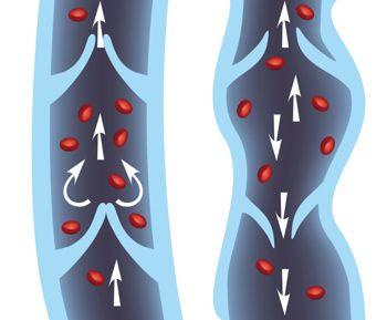 normal vein vs a varicose vein