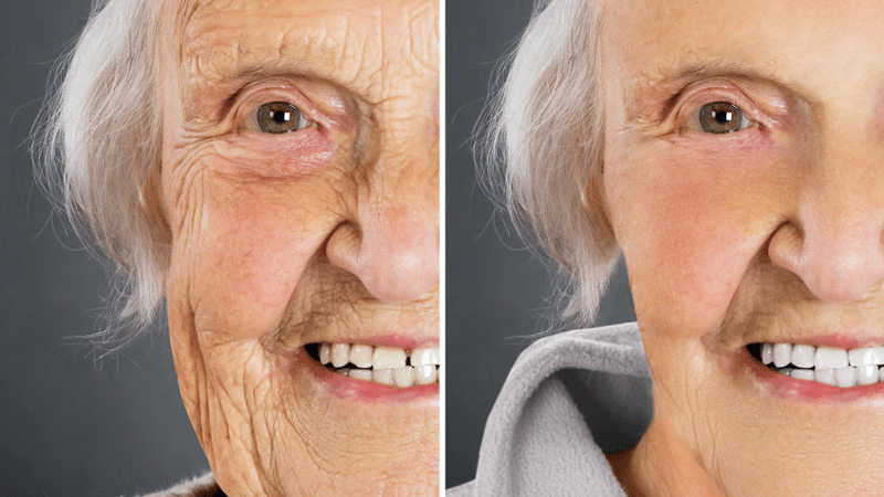 elderly woman before and after Juvederm