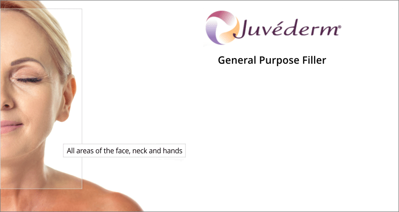 treatment areas juvederm