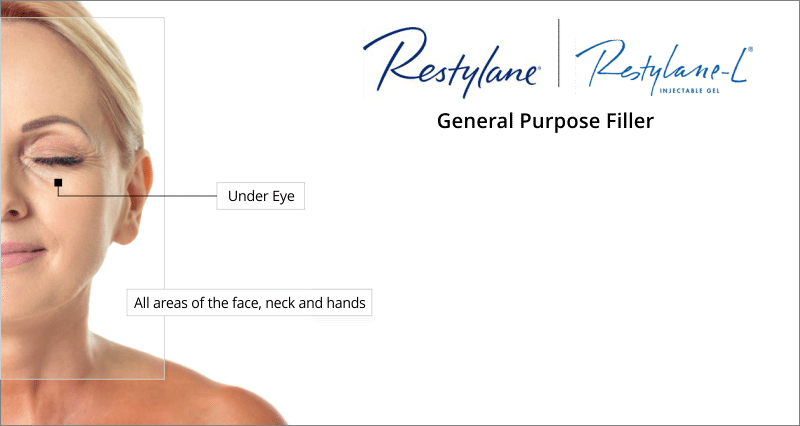 treatment areas restylane