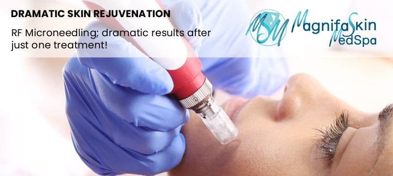 rf microneedling skin rejuvenation therapy