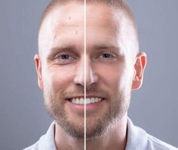 rf microneedling for men