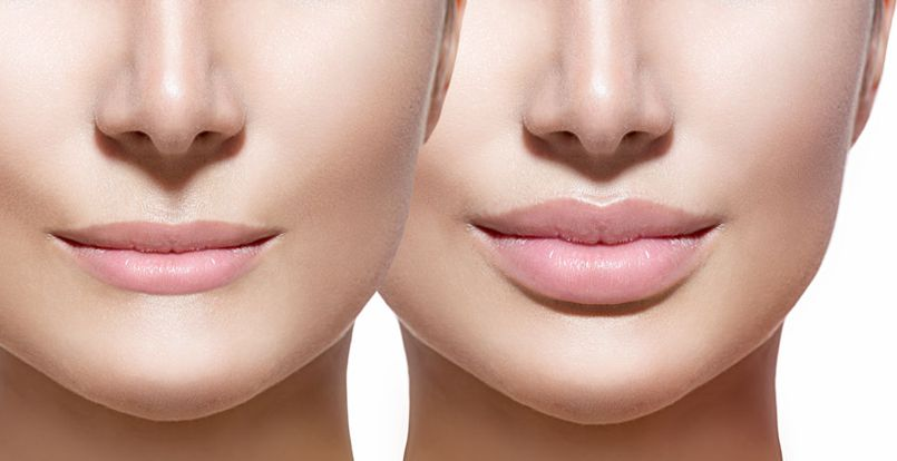 before and after lip filler with restylane