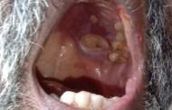 रेमडेसिवीर इंजेक्शन घेतल्यामुळे अशा रुग्णांना 'म्युकोरमायकोसिस'चा धोका