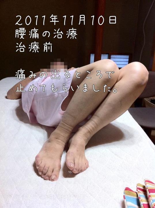 腰痛ぎっくり腰の治療