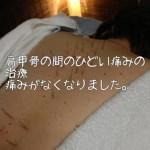 胸肩肩甲骨周辺の痛みと圧迫感の治療