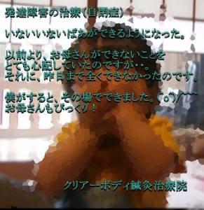 発達障害の治療(自閉症)