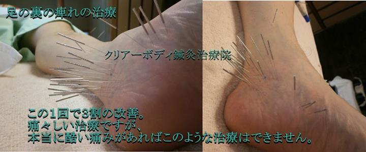 足の裏の痺れの治療・痛みを我慢する価値があります。|福岡県福津古賀宗像北九州市
