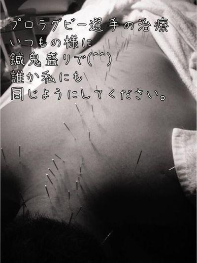 プロラグビー選手の治療首こり肩こりの治療・ラグビー選手でもありますよ。|福岡県福津古賀宗像北九州市