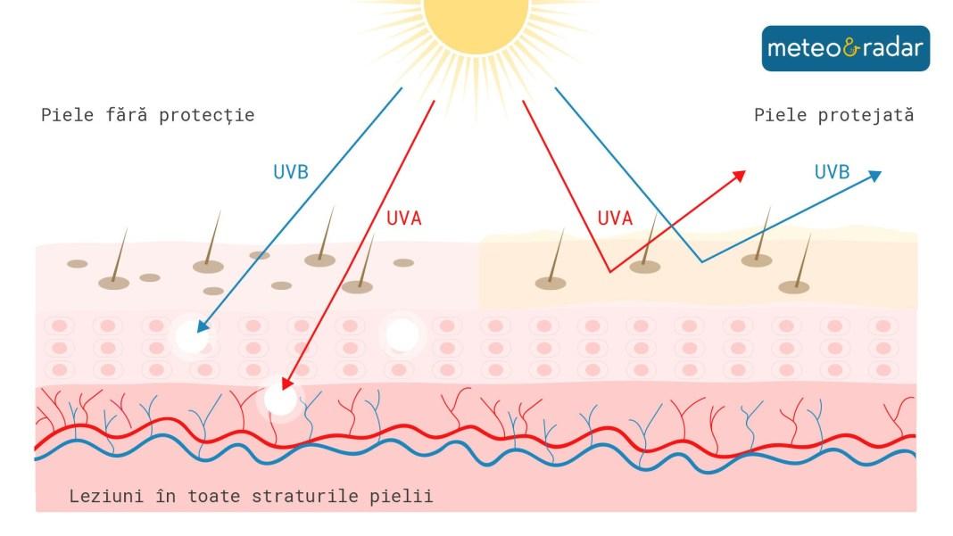 Cum afecteaza radiatiile UV pielea