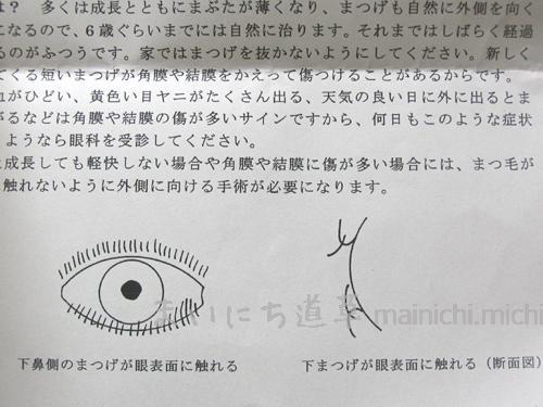 睫毛内反(逆さまつげ)