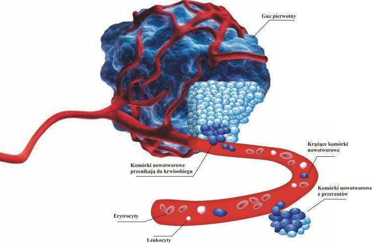 monitorowanie komórek nowotworowych
