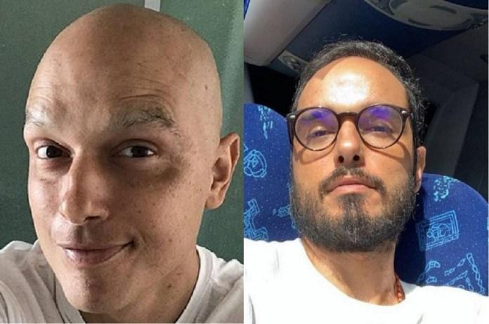 Ator Léo Rosa mostra cabelos crescidos e diz sobre câncer: