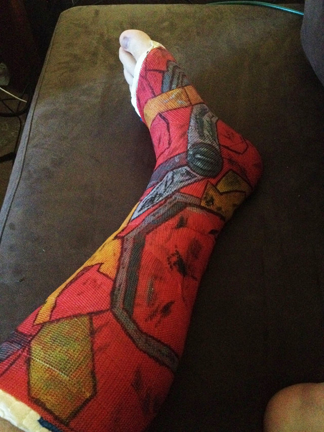 iron-man-leg-cast
