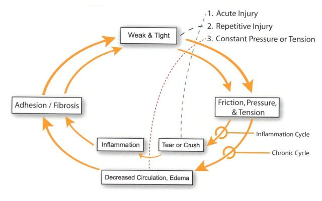 active-release-pain-cycle