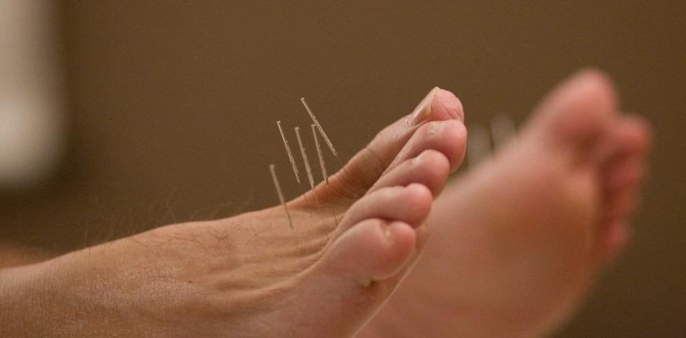 acupuncture-points