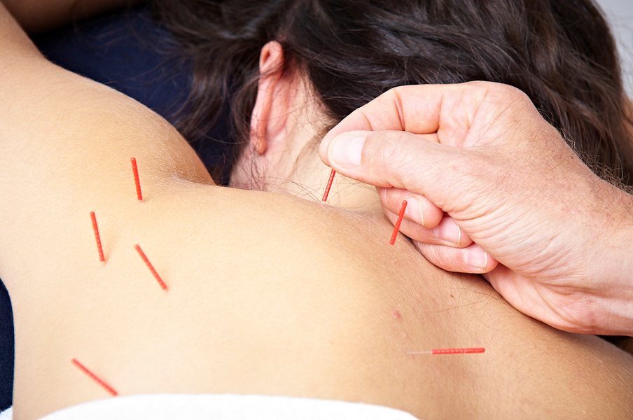 does-acupuncture-work