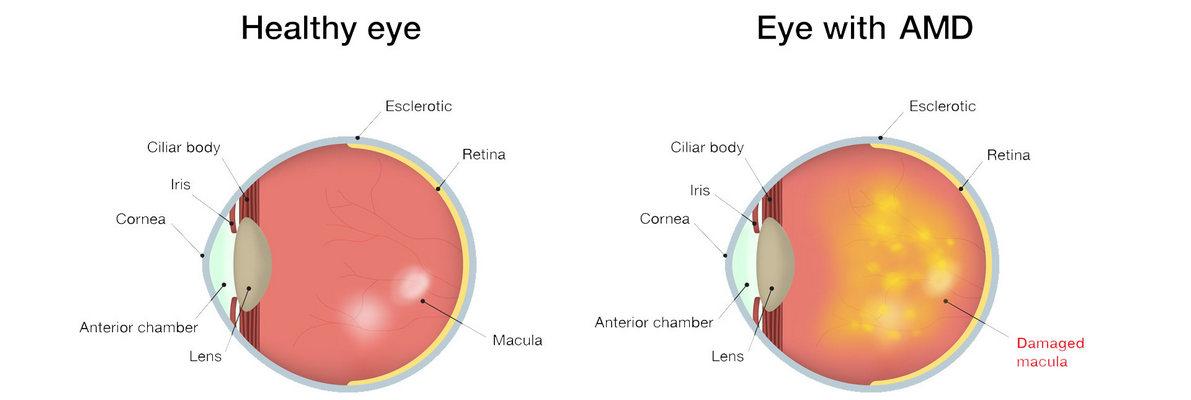 macular-degeneration-symptoms