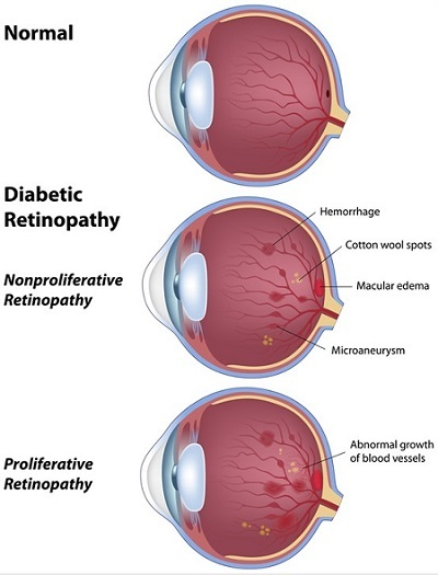 diabetic-retinopathy-stages