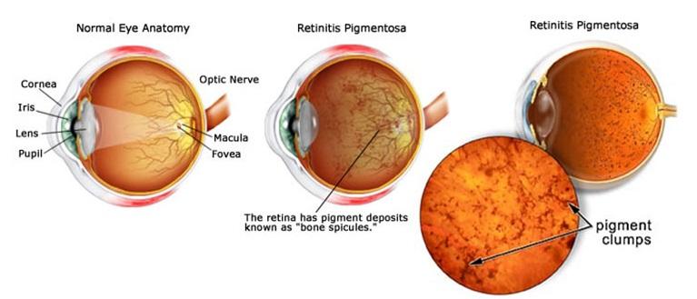 retinitis-pigmentosa-cure