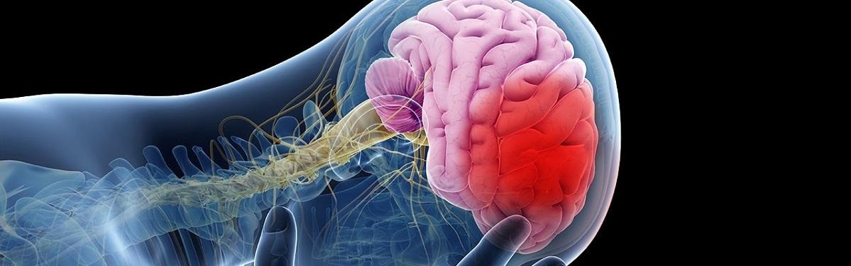 stroke-treatment