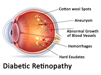 what-is-diabetic-retinopathy