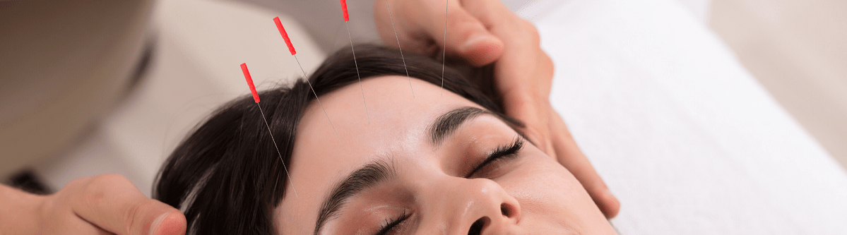 aphasia-acupuncture