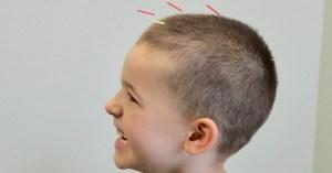 pediatrics acupuncture