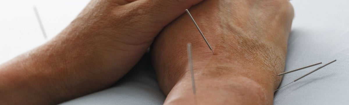 acupuncture-for-neuropathy