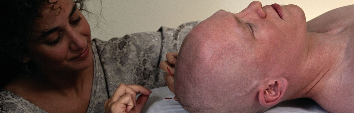 acupuncture-for-alzheimers