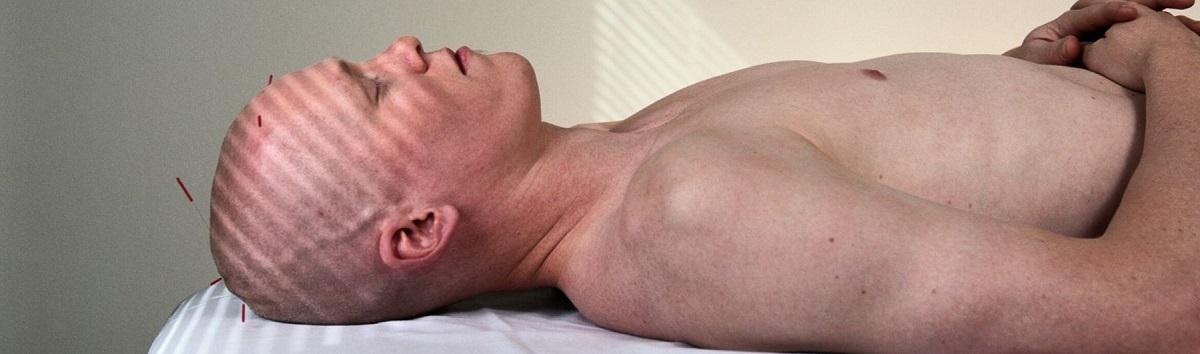 neuro-acupuncture