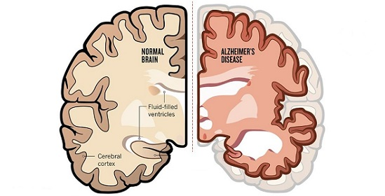 treating-alzheimers-with-acupuncture