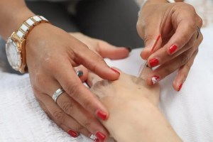 dry-needling-vs.-acupuncture