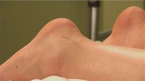 acupuncture-for-sprained-ankle